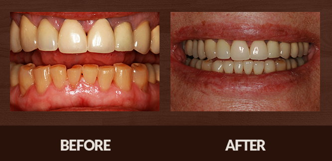Sabet_Smile-Gallery_Veneers-(1)