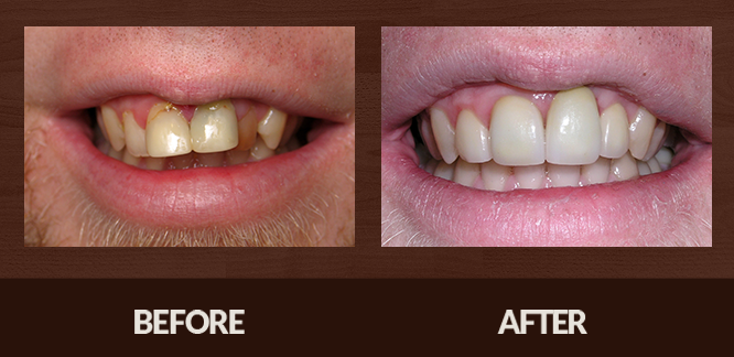 Sabet_Smile-Gallery_Veneers-(2)