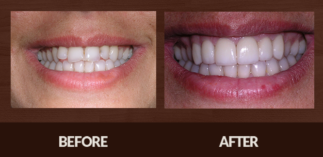 Sabet_Smile-Gallery_Veneers-(3)