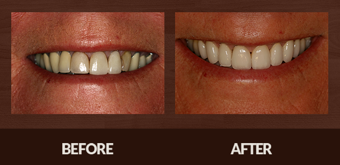 Sabet_Smile-Gallery_Veneers-(4)