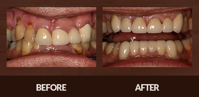 Sabet_Smile-Gallery_Veneers-(5)