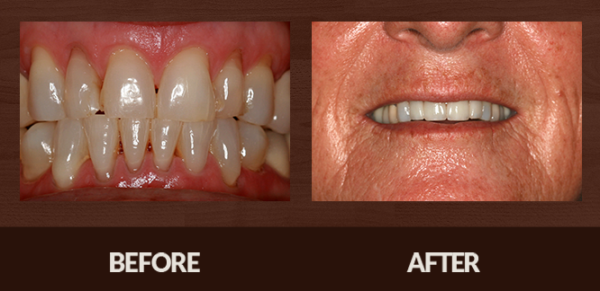Sabet_Smile-Gallery_Veneers-(6)