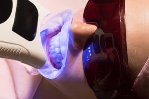 vista dental sealants
