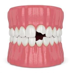 vista dental bonding